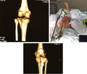shattered tibia pictures